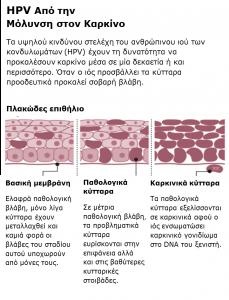 HPV-kondilomata